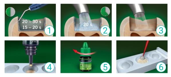 Инструкция пошагового применения адгезива Gluma Bond 5 Charisma
