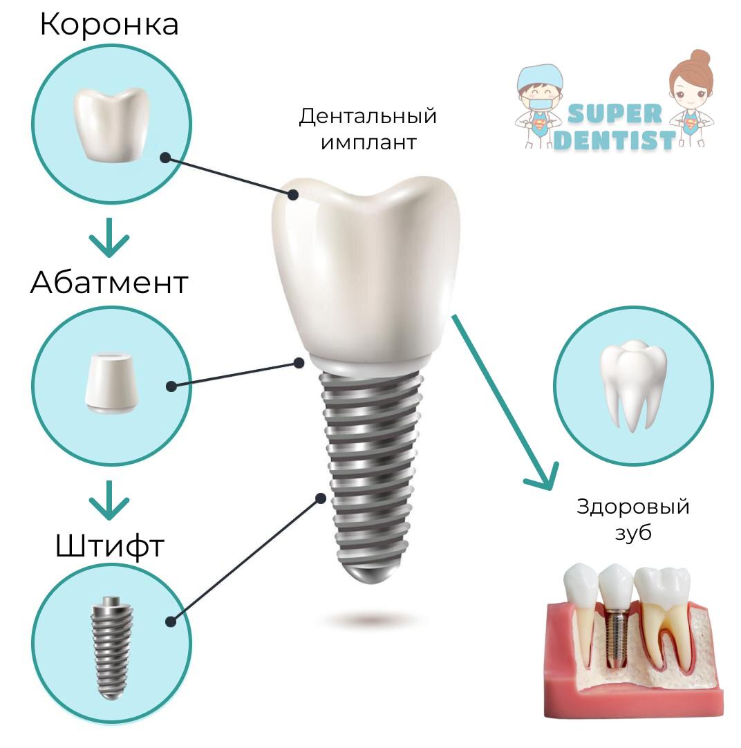 процесс установки дентального импланта